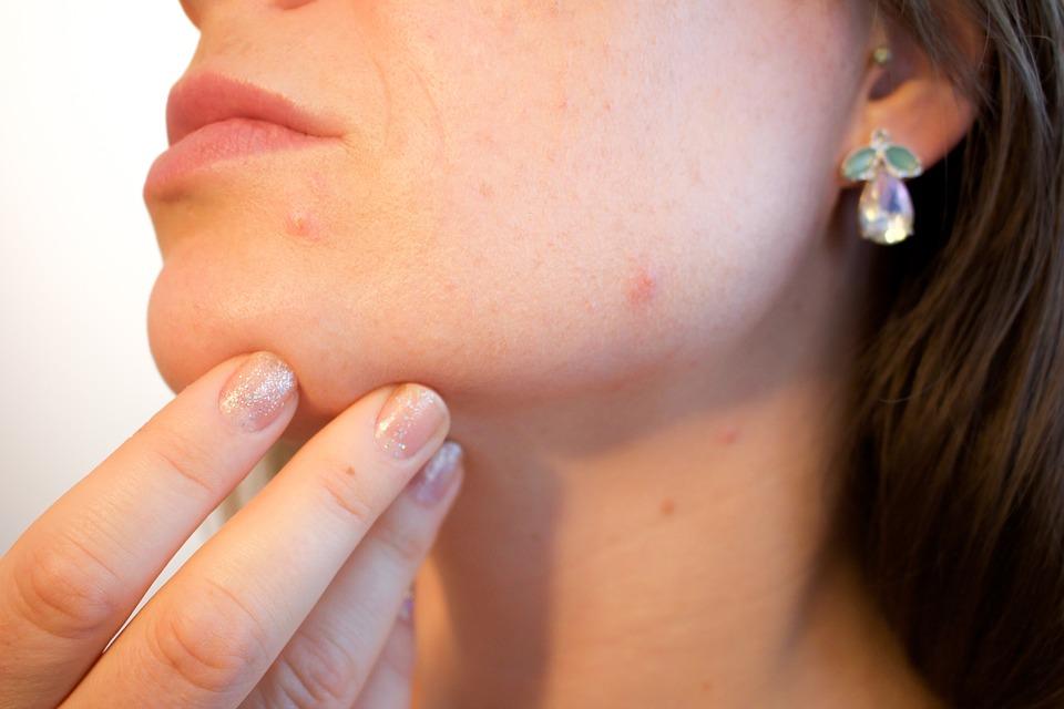 Essence des cicatrices d'acné chez l'Homme